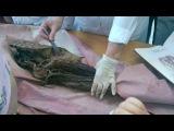 Спинномозговые нервы. Поясничное сплетение.1